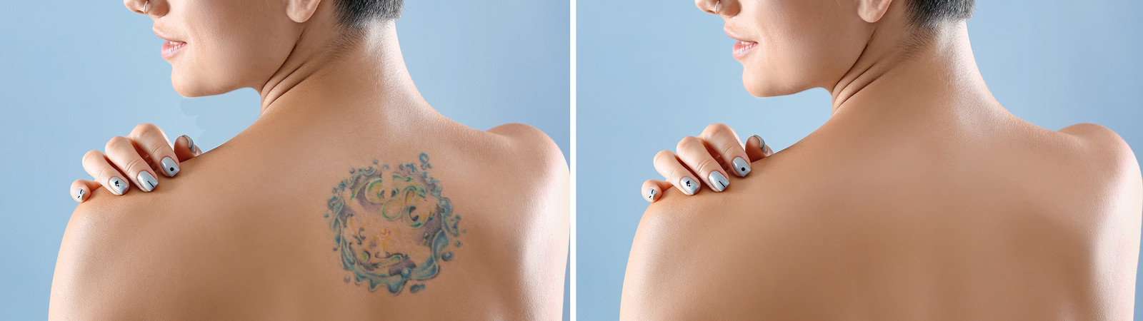 laser tattoo removal, Effective Treatment: How Long Does Laser Tattoo Removal Take?